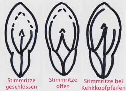 Die Öffnung des Kehlkopfes bei Kehlkopfpfeifen