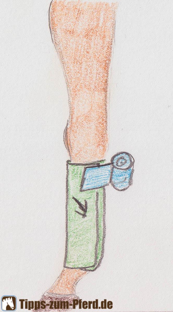 Ansetzen der Bandage - (Foto: Franziska Goldmann)